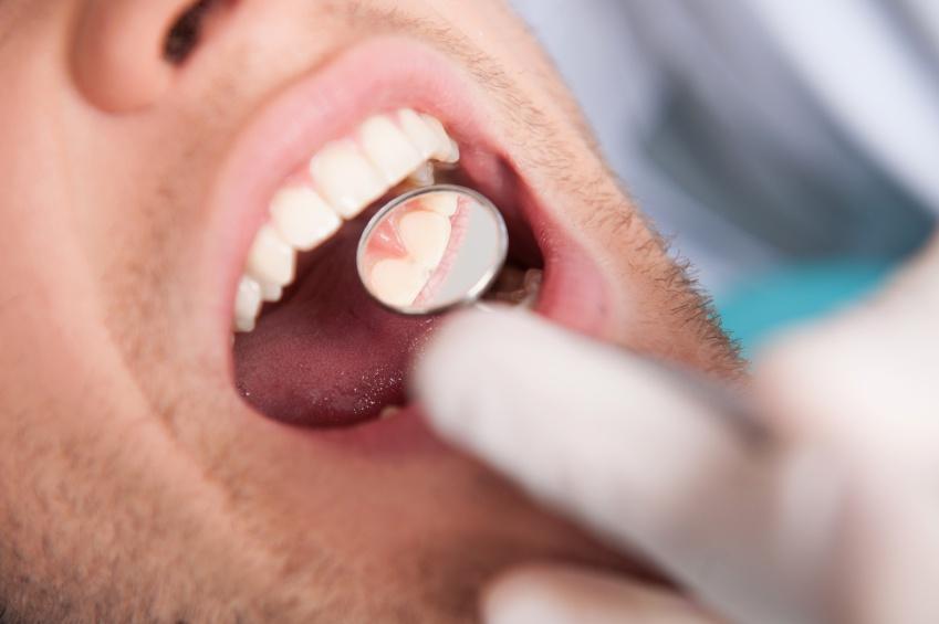 Удаление ретинированного зуба мудрости на нижней челюсти
